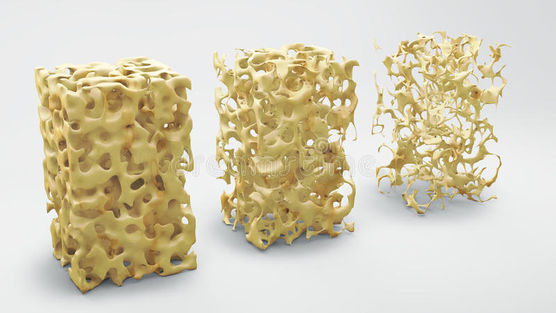 Bone structure normal and with osteoporosis. Bone structure 3d illustration, normal and with osteoporosis stock illustration