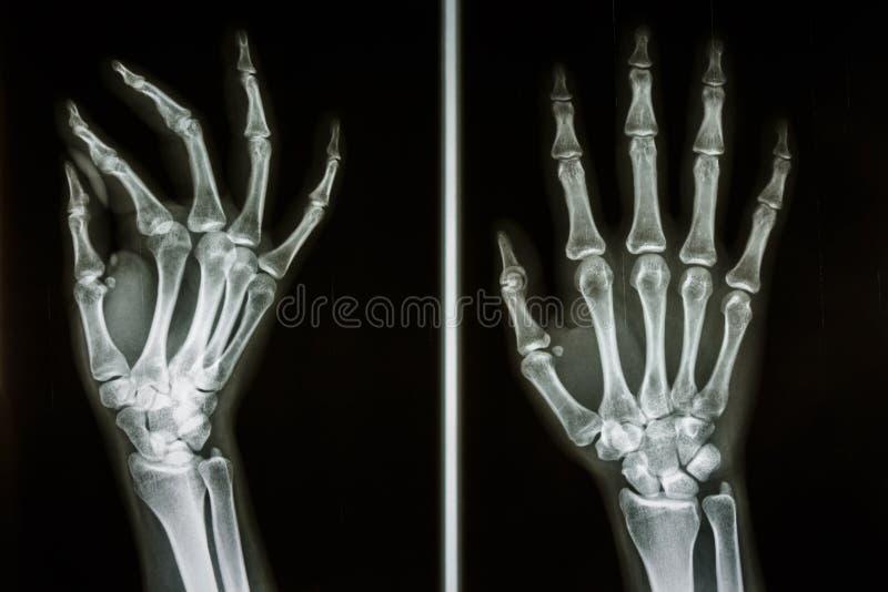 Bones Of Human Hands Stock Photo Image Of Broken Emergency 36981050