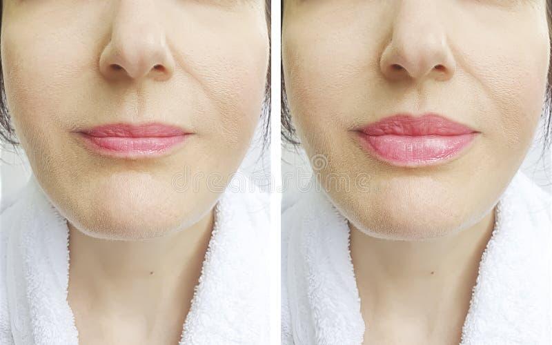 Bordos da mulher antes e depois da injeção da diferença do aumento da correção fotografia de stock royalty free