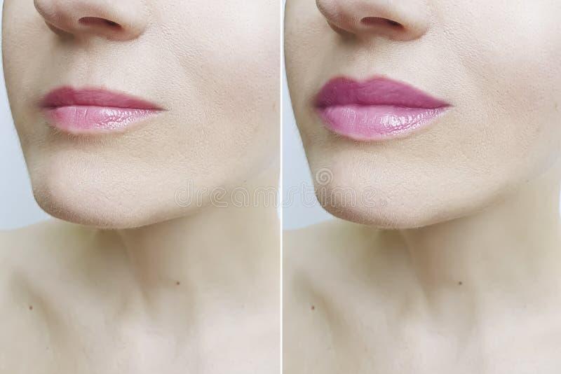 Bordos da mulher antes e depois da injeção perfeita da diferença do aumento da correção foto de stock royalty free