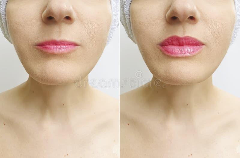 Bordos da mulher antes e depois da injeção perfeita da diferença do aumento da correção do realce foto de stock royalty free