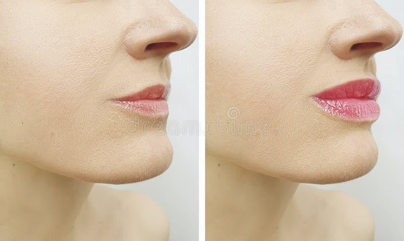 Bordos da mulher antes e depois da injeção perfeita da diferença do aumento da correção do realce da terapia fotos de stock