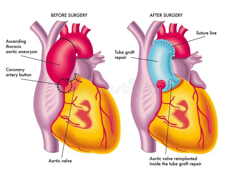 Borst aortaaneurisma royalty-vrije illustratie