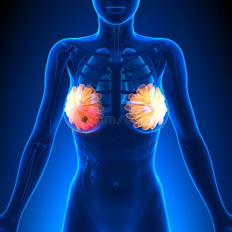 Borstkanker - Vrouwelijke Anatomie - tumorhoogtepunt vector illustratie