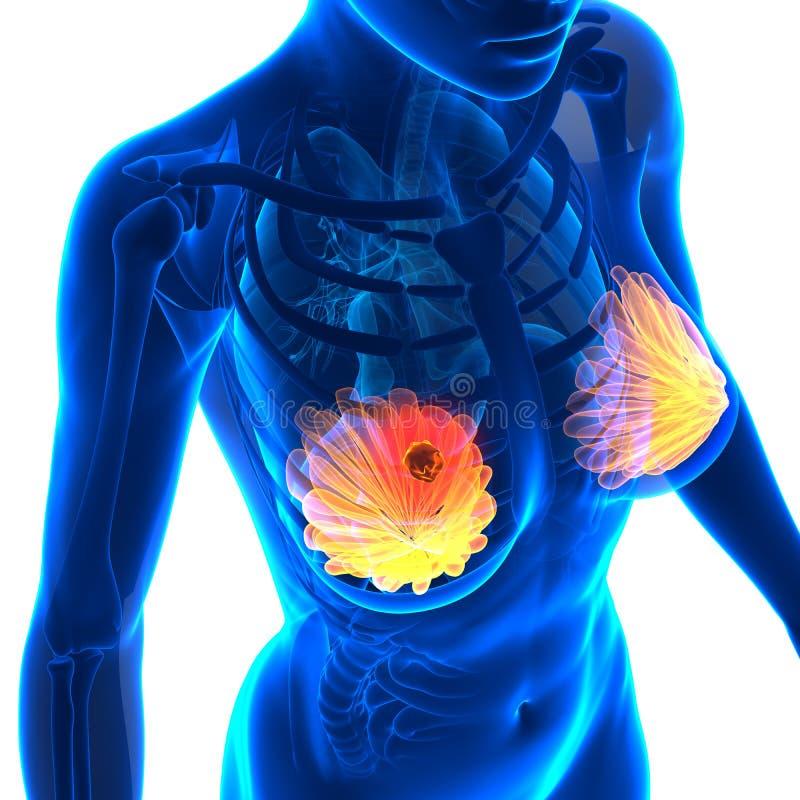 Borstkanker - Vrouwelijke die Anatomie - op wit wordt geïsoleerd royalty-vrije illustratie