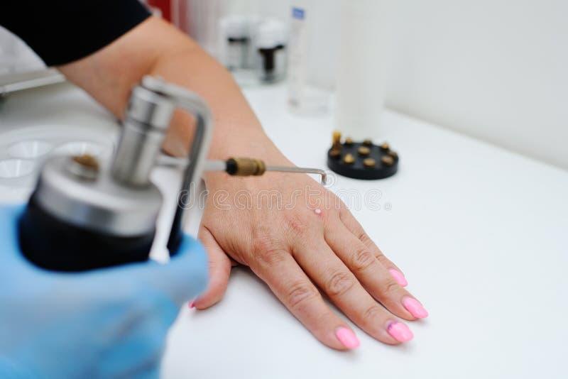 Borttagning av vårtor i hudklinik arkivfoto