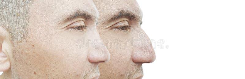 Bosse de nez d'homme avant et après le comparatif de traitement photo libre de droits