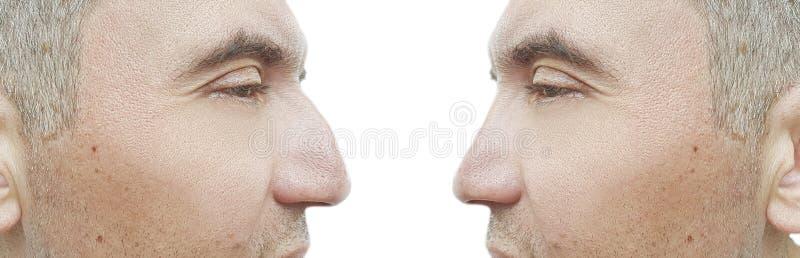 Bosse de nez d'homme avant et après le comparatif de traitement de problème photos stock