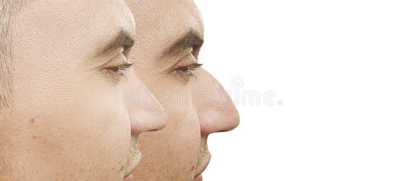 Bosse masculine de nez avant et après la différence de procédure de traitement photo stock