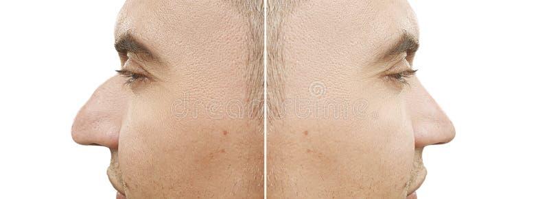 Bosse masculine de nez avant et après la différence de traitement photographie stock libre de droits