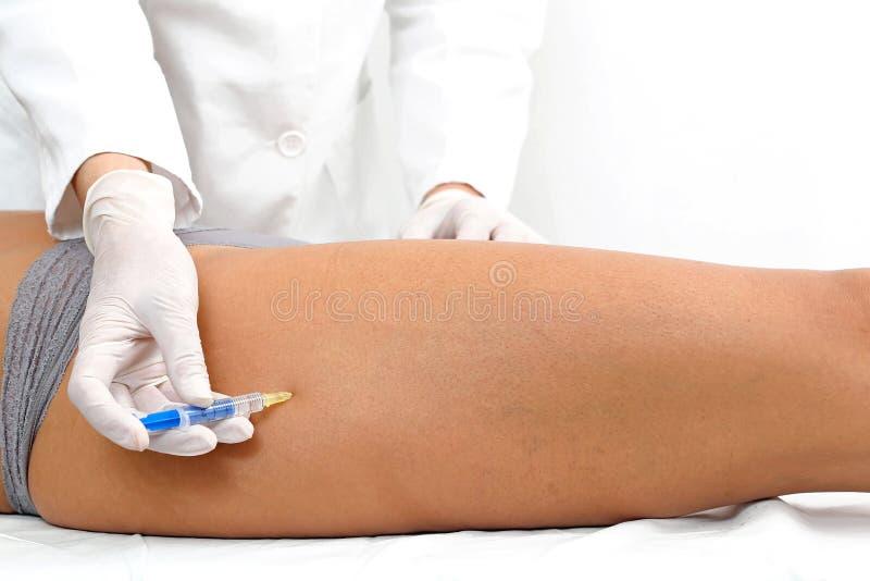 Botox-Bein lizenzfreie stockfotografie
