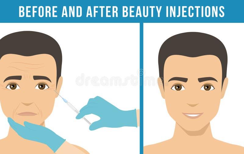 Botox cosmético dos procedimentos ilustração do vetor