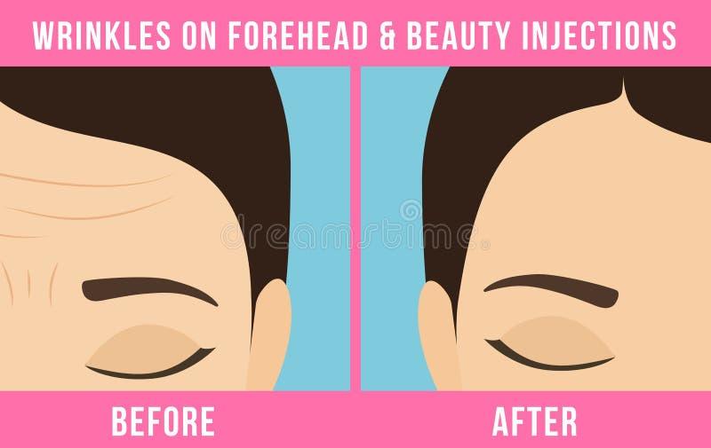 Botox cosmético dos procedimentos ilustração stock