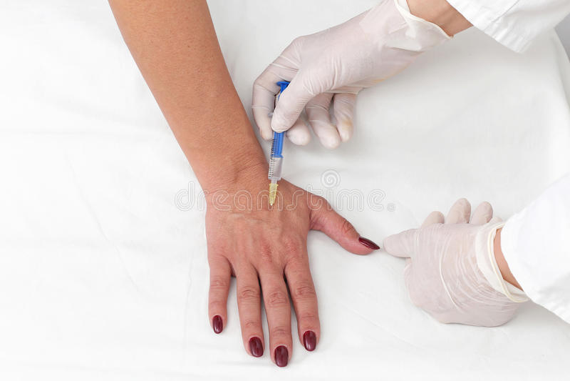Botox da mão imagens de stock
