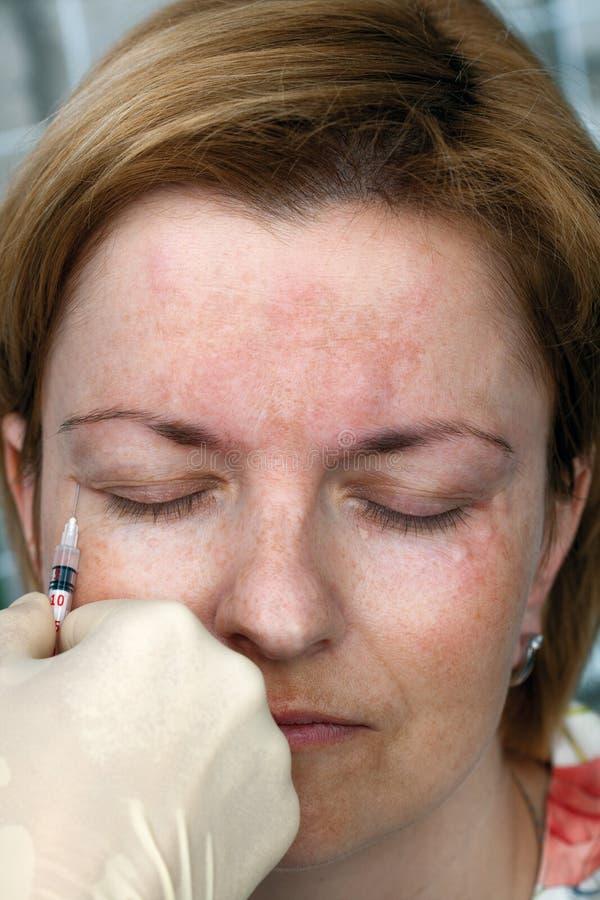 Botox injection royalty free stock photos
