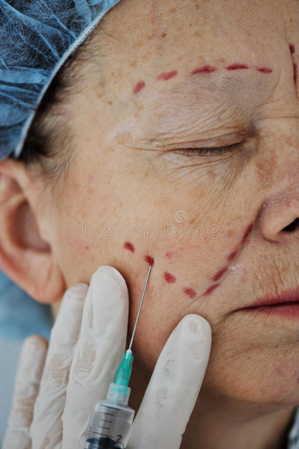 Free Botox Injection Royalty Free Stock Image - 23286736