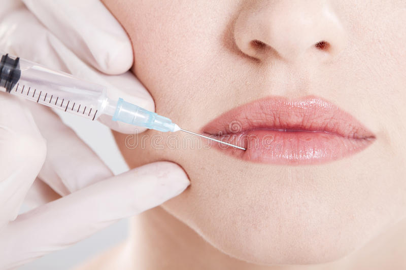 Botox injection in lip royalty free stock photo