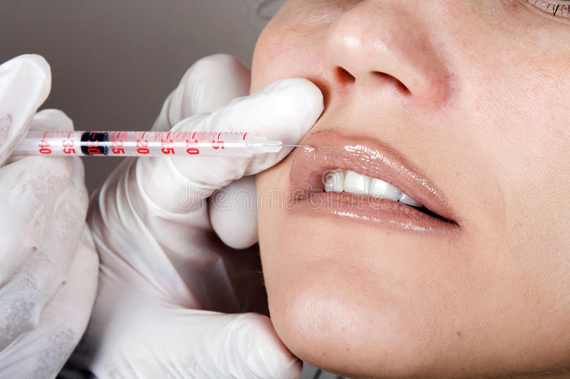 Botox injections in her lips stock photo