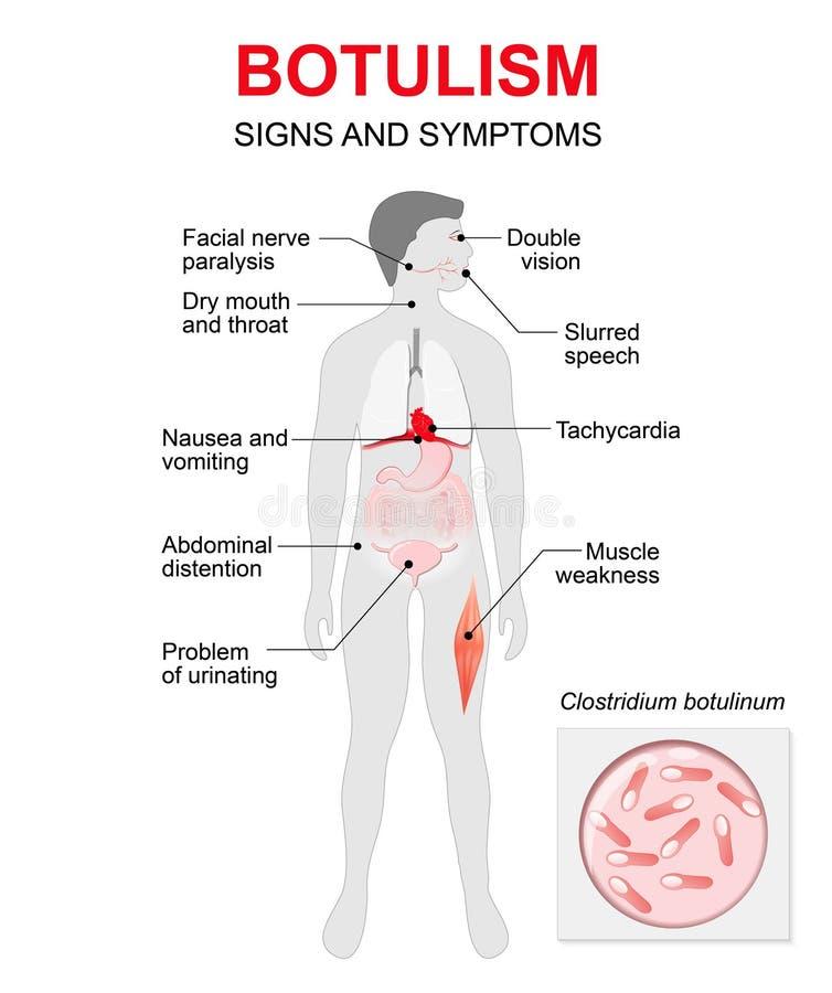 botulismo Silueta humana con los órganos internos destacados ilustración del vector
