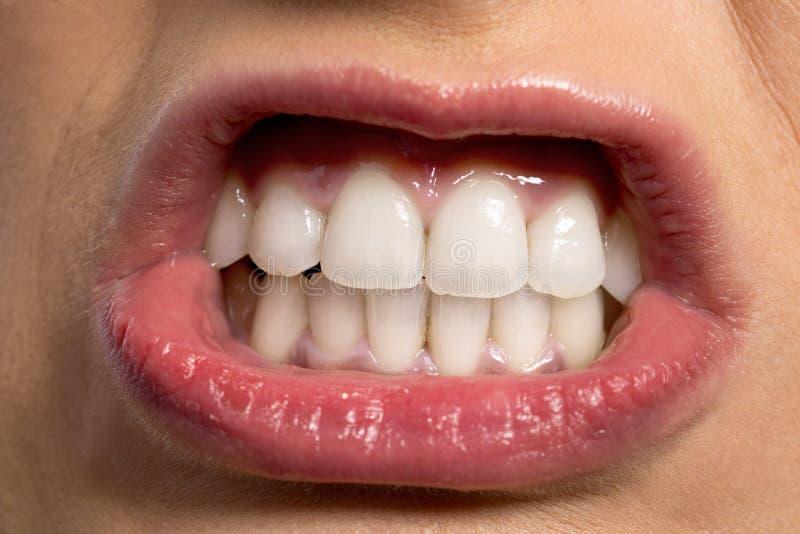 Bouche drôle avec de belles dents blanches photo stock