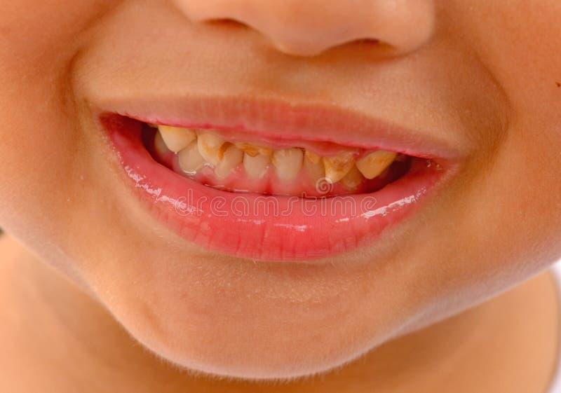 Bouche ouverte de patient d'enfant montrant la décomposition dentaire de carie photos libres de droits