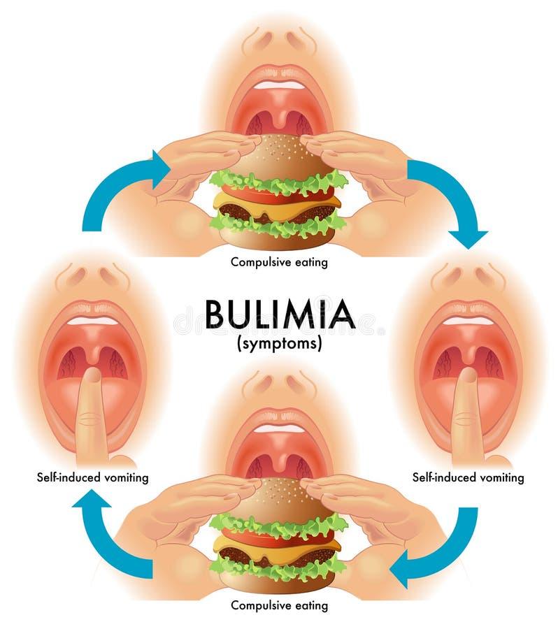 boulimie illustration libre de droits