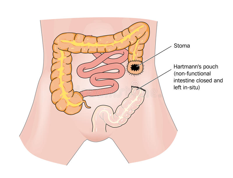 Bowel cancer and stoma stock illustration