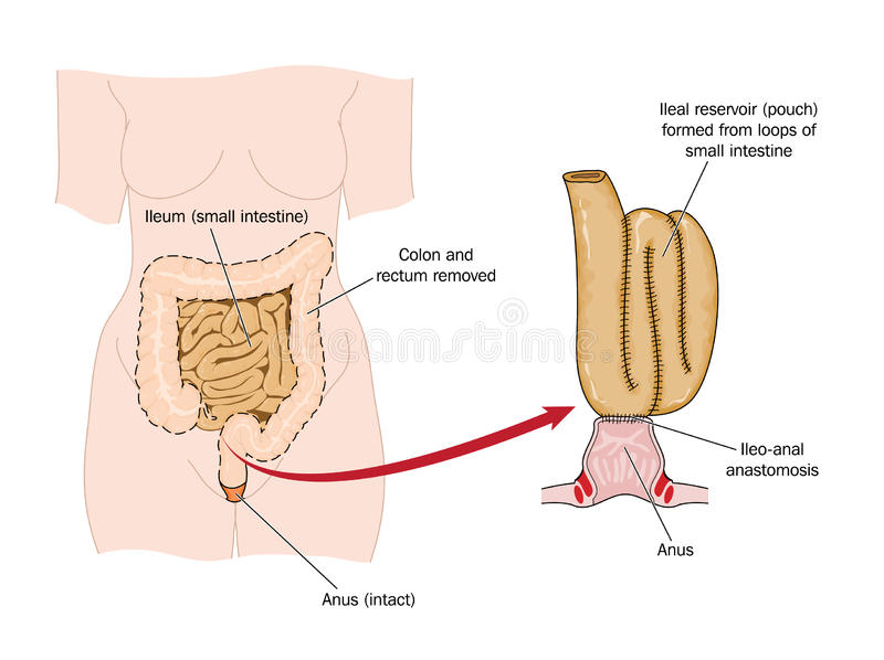 Download Bowel Removed And Rectal Pouch Royalty Free Stock Photo - Image: 25176045
