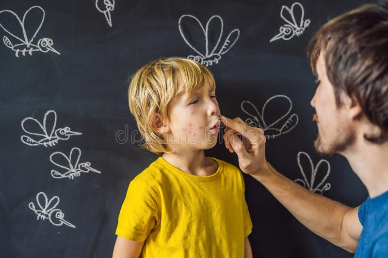 The boy is bitten by mosquitoes on a dark background. Dad smears his bite ointment. On the blackboard with chalk painted. Mosquitoes stock image