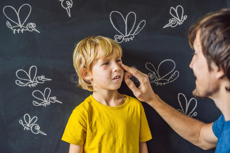 The boy is bitten by mosquitoes on a dark background. Dad smears his bite ointment. On the blackboard with chalk painted. Mosquitoes stock photo