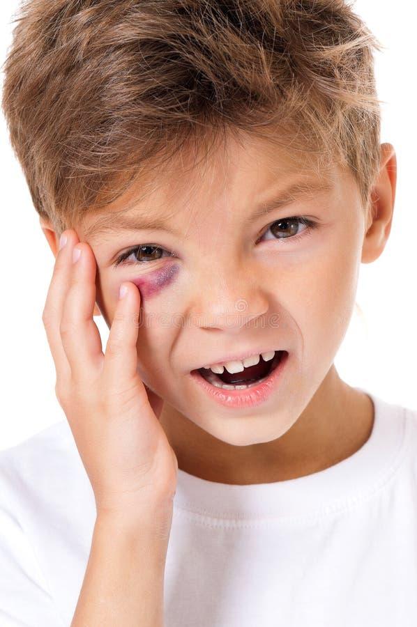 169 Abuse Bruise Child Photos - Free & Royalty-Free Stock ...