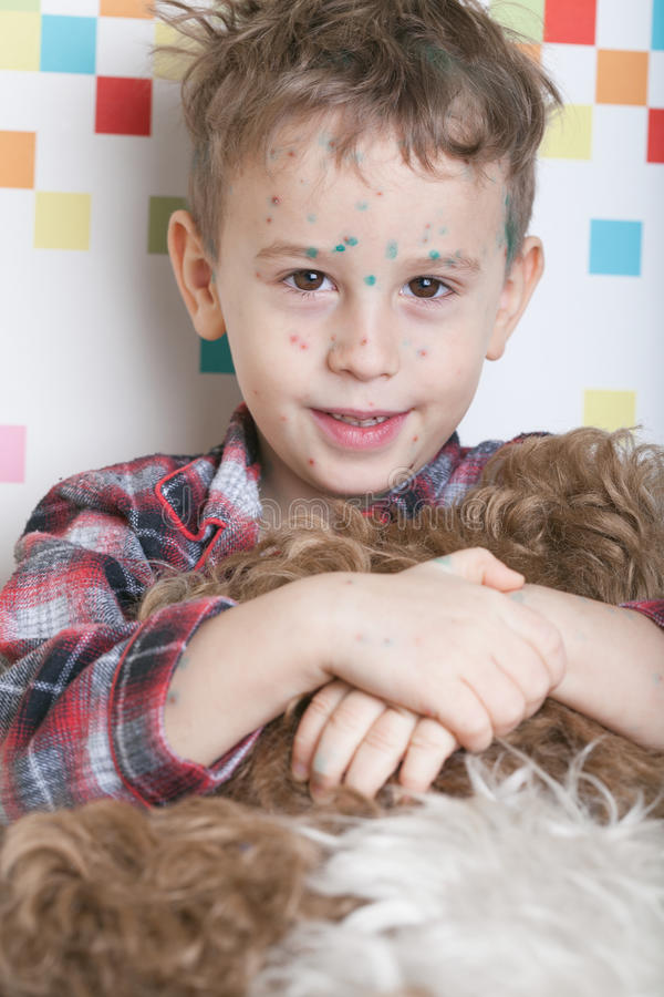 Boy with chicken-box. Portrait of a playful and friendly boy with chicken-box (green dots made with blakstonia or brilliant essence are used to distinguish royalty free stock images