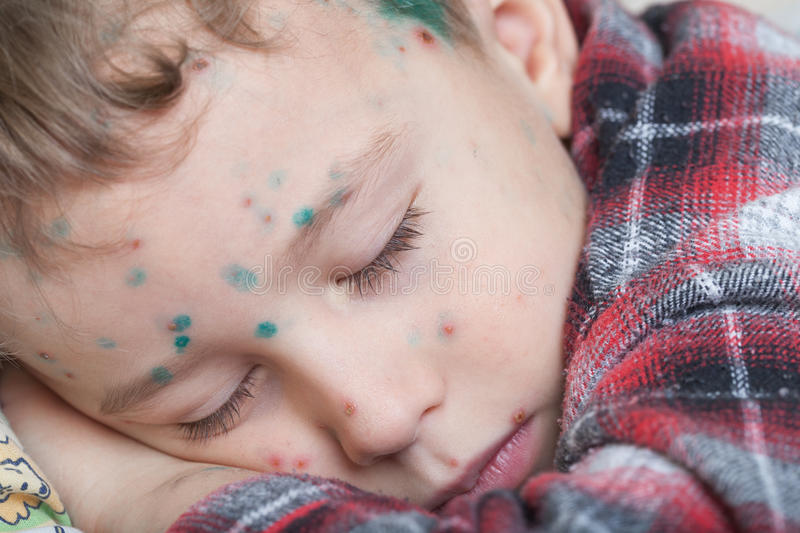 Boy with chicken-box. Portrait of a sleeping boy with chicken-box (green dots made with blakstonia or brilliant essence are used to distinguish between new and stock photo