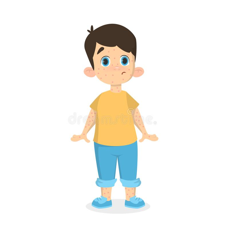 Boy with chickenpox. vector illustration