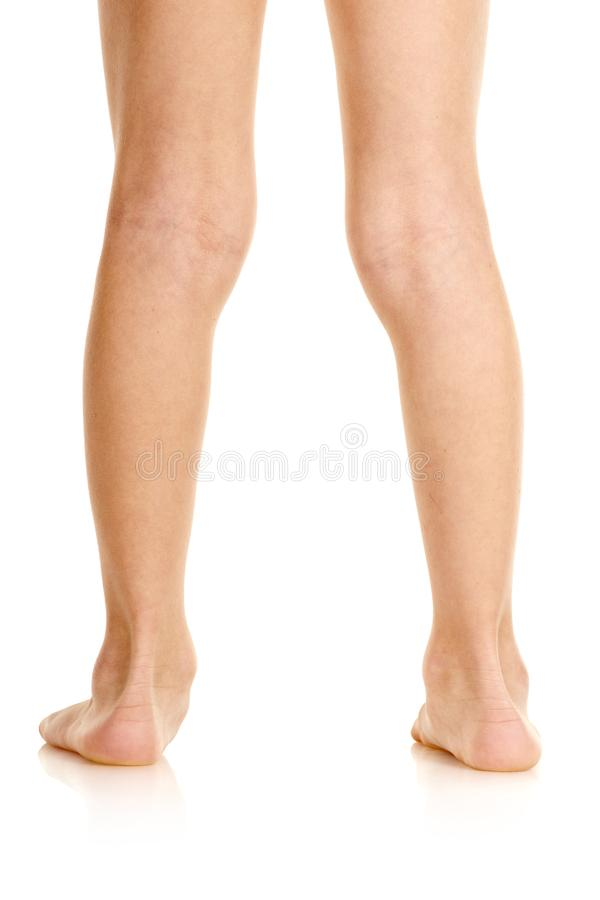 Boy with deformed feet royalty free stock images