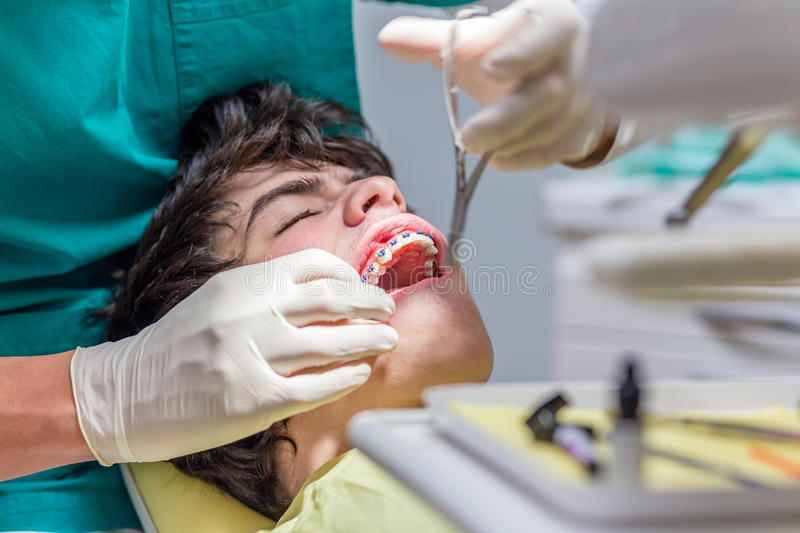 Boy in the dental chair. Open-mouthed boy lying in the dental chair while the orthodontist is arranging the braces on teeth stock photography