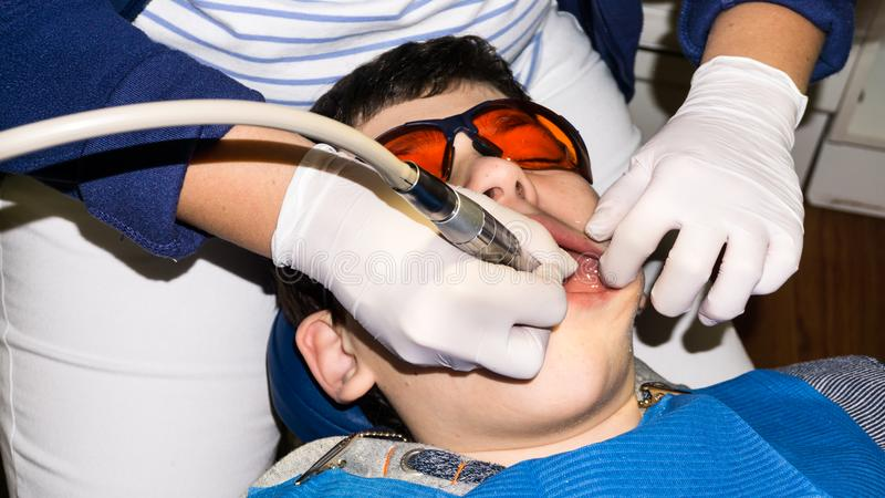 Boy in dental treatment. brace. health care stock photo