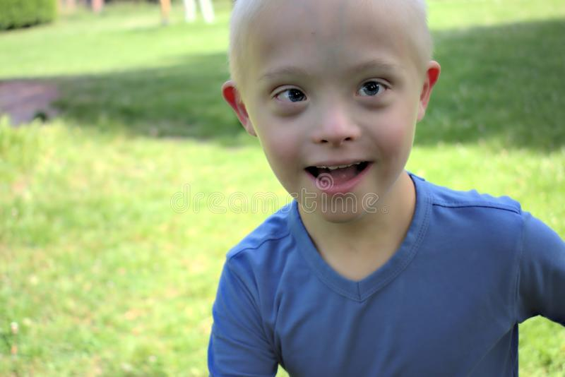 Boy with a down syndrome who is playing in a park. Defect,childcare,medicine and people concept- young boy with a down syndrome who is playing in a park royalty free stock photography