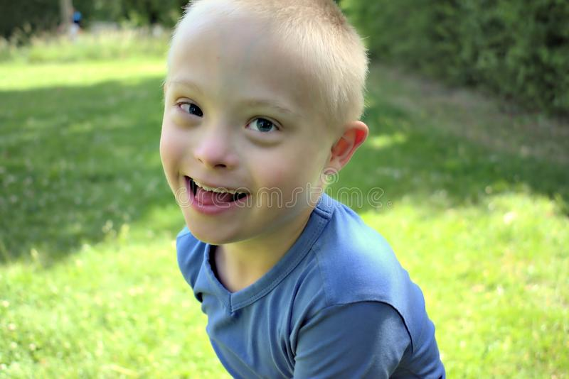 Boy with a down syndrome who is playing in a park. Defect,childcare,medicine and people concept- young boy with a down syndrome who is playing in a park royalty free stock images