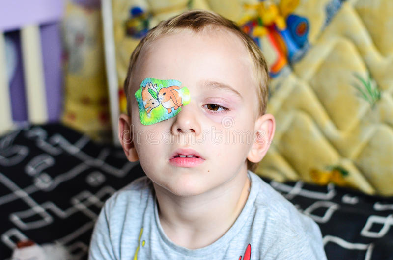 Boy with Eyepatch. Cute little boy with eyepatch for a correction of the vision stock images