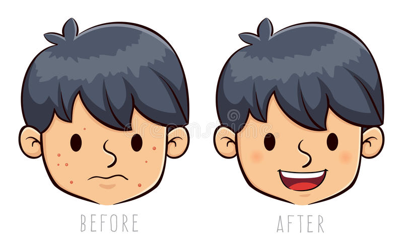 Boy Face With Acne Problem Before And After. Vector stock of a boy face with acne problem, before and after vector illustration
