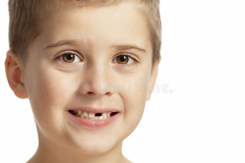 A boy without a front tooth smiles. Close-up. Isolated over white background. Horizontal stock images