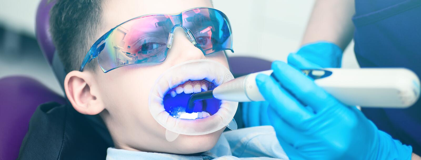 A boy with goggles in the dental chair. Mouth directed lightpolymerization lamp with blue light for sustainable fillings. The boy with goggles in the dental stock photos
