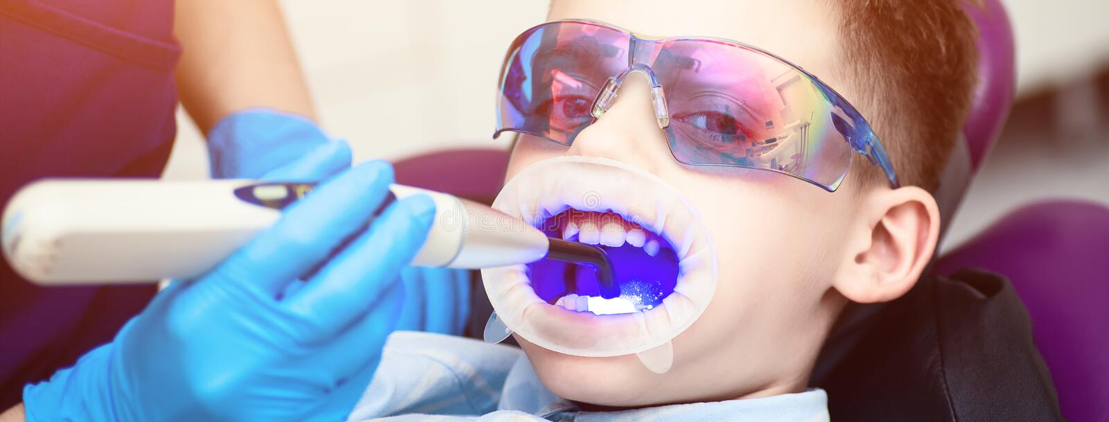 A boy with goggles in the dental chair. Mouth directed lightpolymerization lamp with blue light for sustainable fillings. The boy with goggles in the dental royalty free stock photos