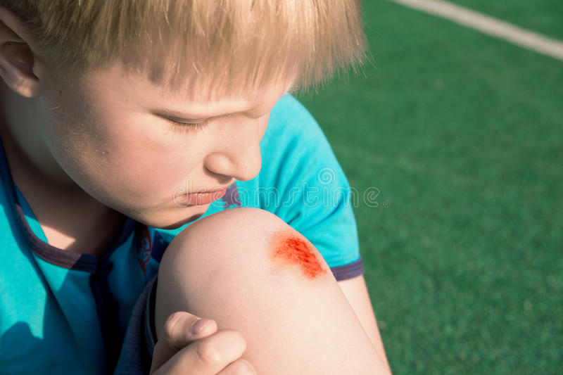 Boy with a scraped knee. Outdoor. Wound on boy knee after accident stock photography