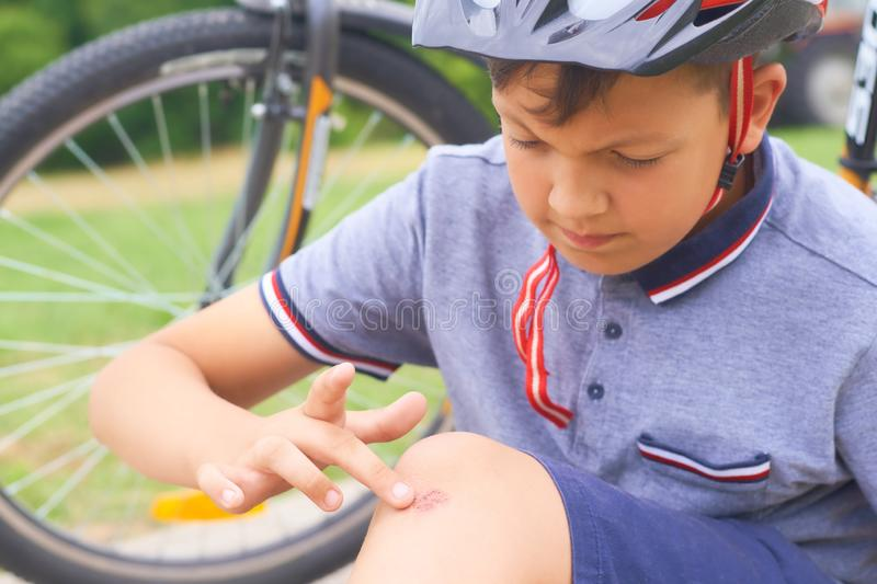 Boy with a scraped knee outdoor. Wound on boy knee after accident. Teenager in a helmet fell off the bike. Boy with a scraped knee outdoor. Wound on boy knee royalty free stock photo