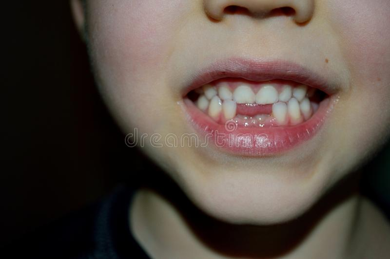 Download Boy Showing Off Two New Teeth Stock Image - Image of again, tongue: 107630983