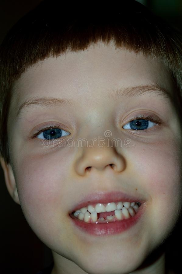 Download Boy Showing Off Two New Teeth Stock Image - Image of dental, child: 107631087