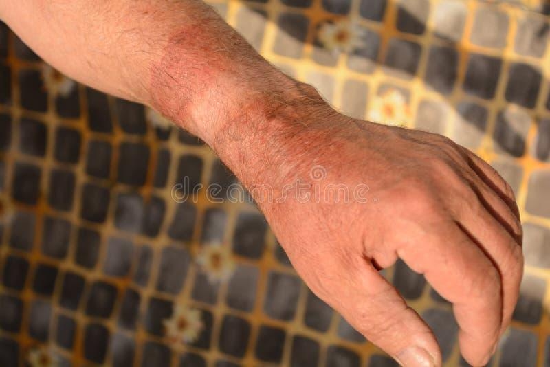 Brännskada för andra grad på armen arkivfoto