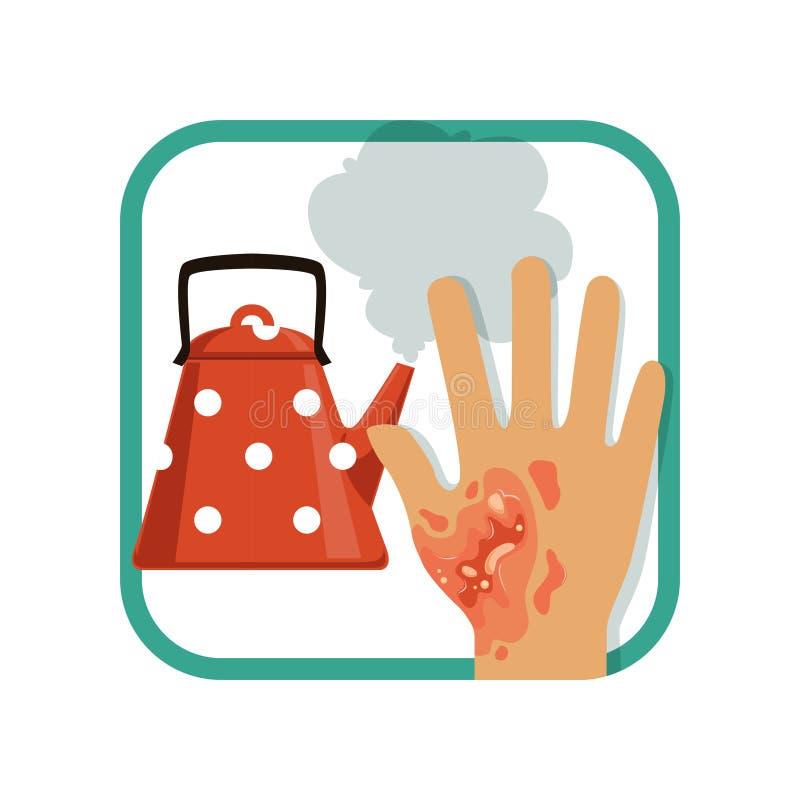 Brännskada för tredje grad för illustrationvisning av handen Sträng brännskadahud från kokkärlet vektor illustrationer